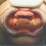 Bone Graft With Impants